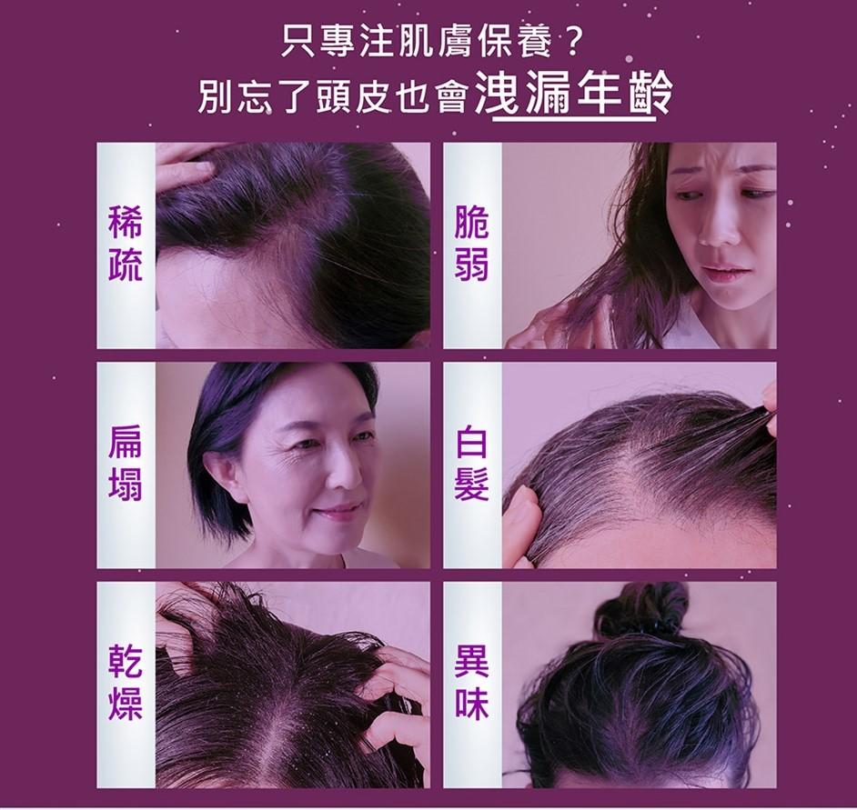終於不用一直戴帽子了。養護頭皮改善塌髮老化|Dr's Formula 逆齡豐盈喚黑髮品試用心得。限時團購開跑